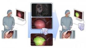 SurgAR vise le podium de la réalité augmentée en chirurgie mini-invasive