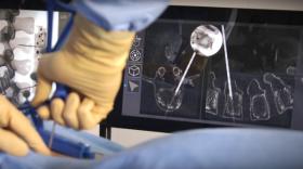 L'appareil Surgivisio permettra aux chirurgiens une plus grande précision lors des opérations