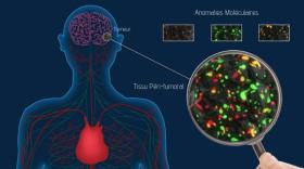 Medimprint avance dans sa lutte contre le cancer du cerveau